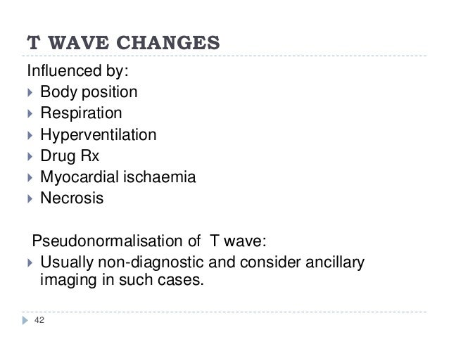 T WAVE CHANGES 42 Influenced by:  Body position  Respiration  Hyperventilation  Drug Rx  Myocardial ischaemia  Necro...