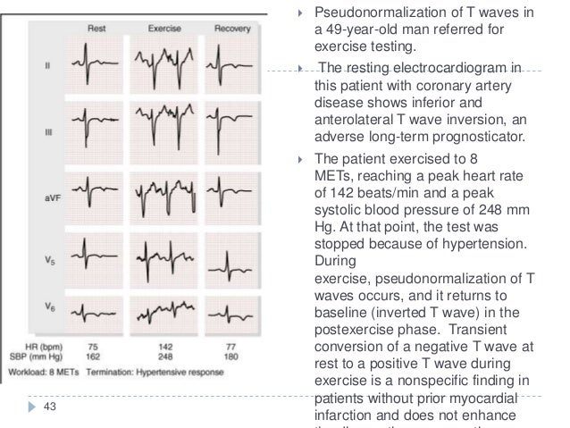 43  Pseudonormalization of T waves in a 49-year-old man referred for exercise testing.  The resting electrocardiogram in...