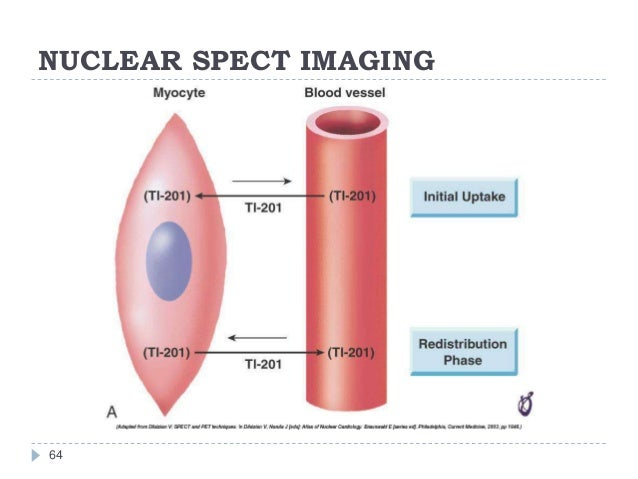NUCLEAR SPECT IMAGING 64