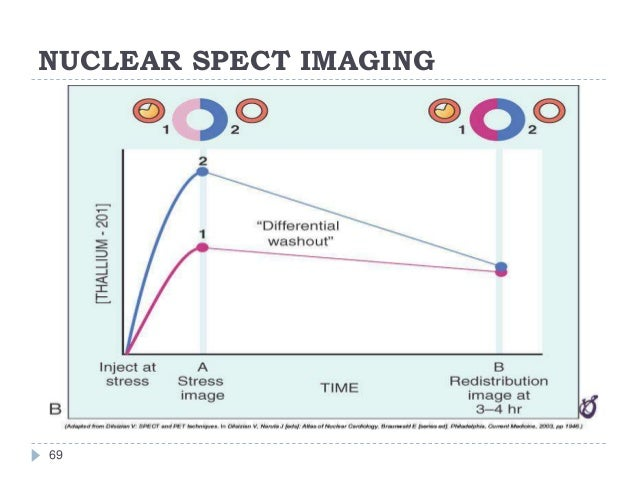 NUCLEAR SPECT IMAGING 69