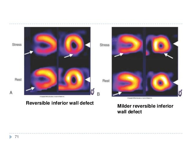 71 Reversible inferior wall defect Milder reversible inferior wall defect