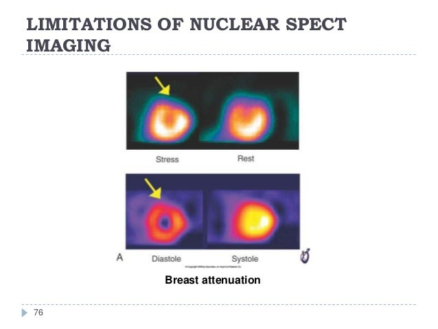 LIMITATIONS OF NUCLEAR SPECT IMAGING 76 Breast attenuation