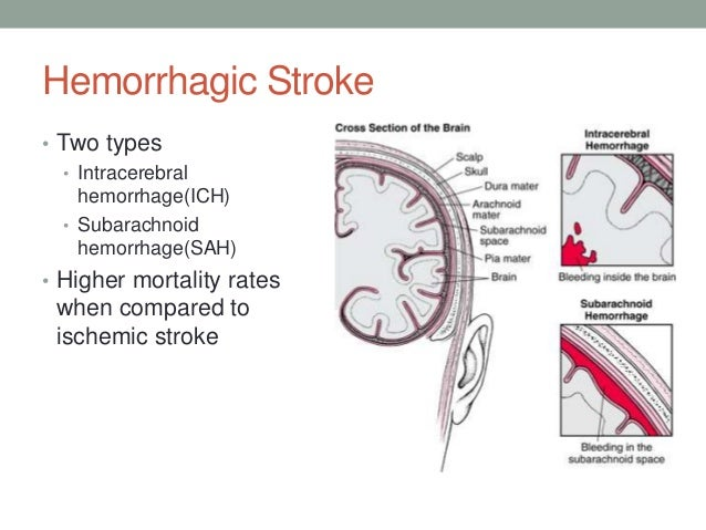 hemorrhagic stroke definition