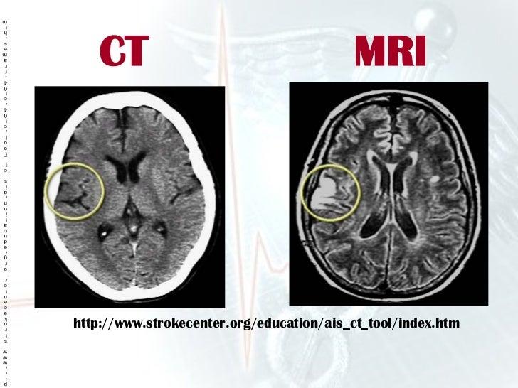 Stroke Presentation Ms on For Embolic Stroke Brain