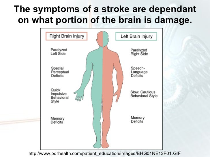 an analysis of the causes and characteristics of strokes Stroke characteristics such as the location and extent of brain damage may help to explain variation in dementia risk observed between studies, and there was some suggestion that dementia risk may .