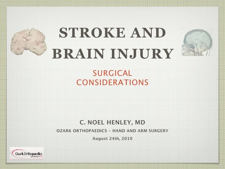 Spasticity in Stroke and Brain Injury Patients Slide 2