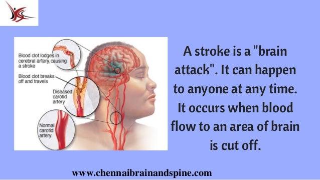 Stroke Treatment In Chennai | Brain Attack Treatment In India