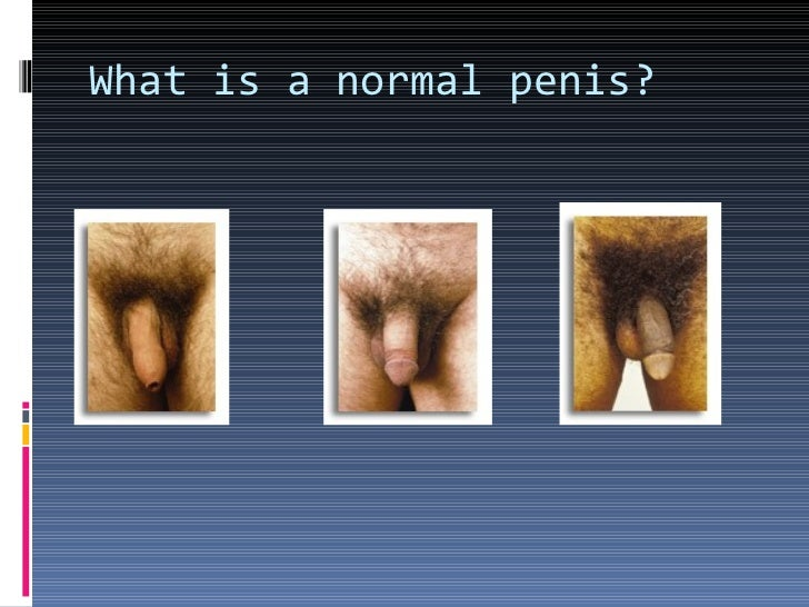Normal penis images