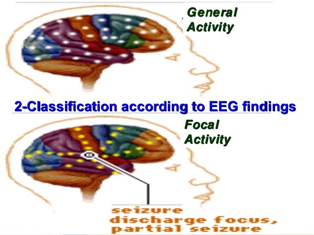 Classification according to EEG findings           Generalized                 Focal      Focal with                      ...