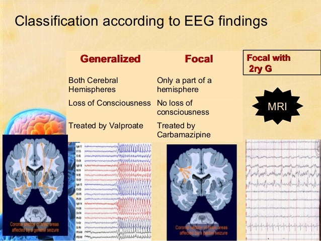 Pediatric Seizures                     Seizure Type Classification                  3- Clinically (ILAE 1981) GENERALIZED...