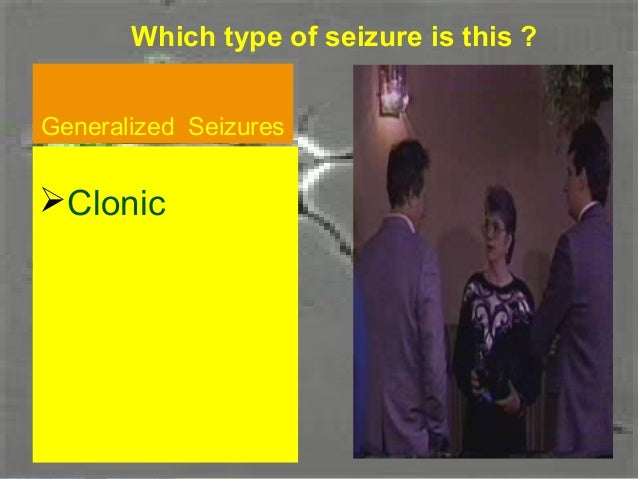 Which type of seizure is this ?Generalized SeizuresGeneralized SeizuresTonic