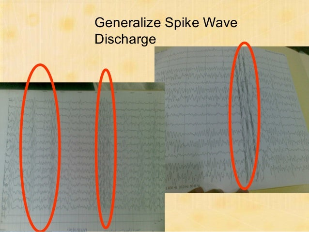 Which type of seizure is this ?   Generalized   Generalized     Seizures    Seizures Absence   VPA, ETX, LMT
