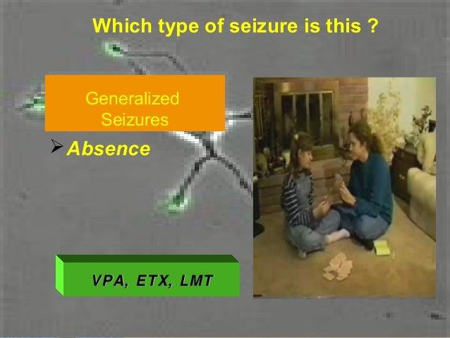 Absence seizures and EEG