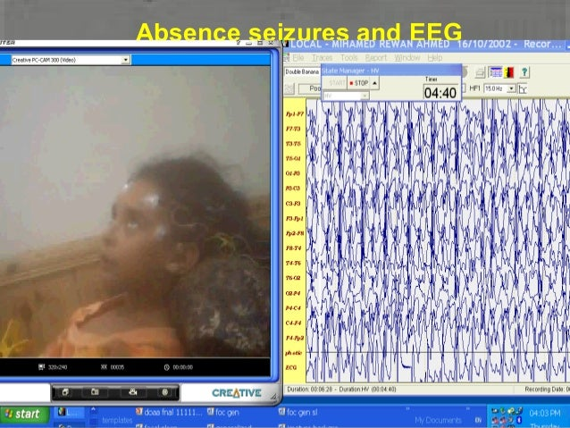 EEG: Absence SeizureEEG: classic 3/sec spike-and-wave especially with HV