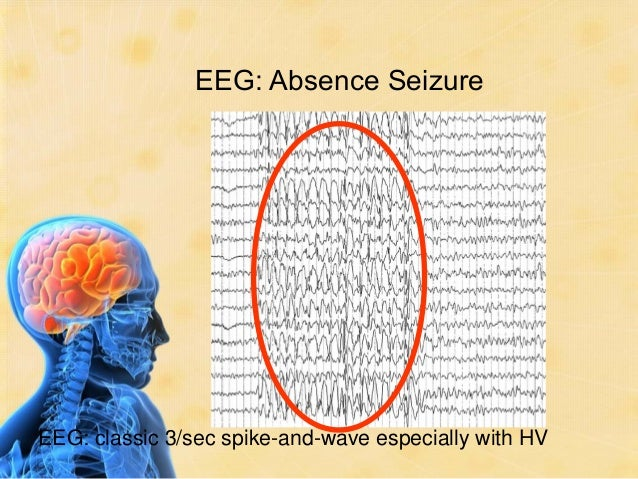 Which type of seizure is this ?      Generalized      Generalized        Seizures       Seizures      Myoclonic