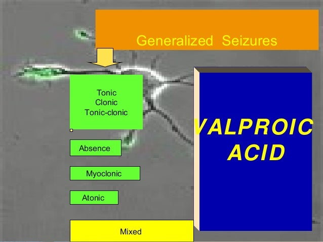 Which type of seizure is this ?          (focal)           simple            Motor