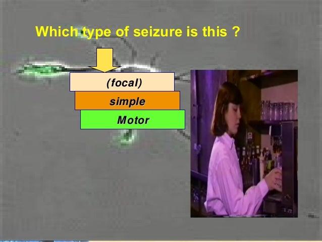 EEG: Simple focal Seizure