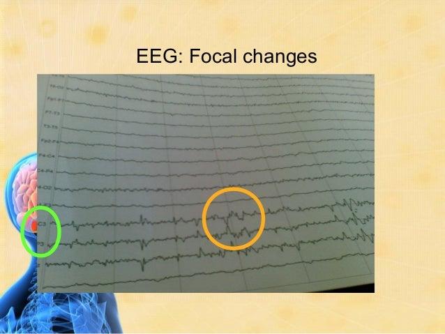 Simple Partial (Focal) Seizures MotorSensoryautonomic psychic
