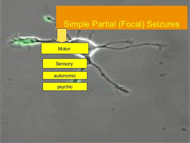 Which type of seizure is this ?          Partial (Focal)         Complex partial            Complex Partial Seizure.flv