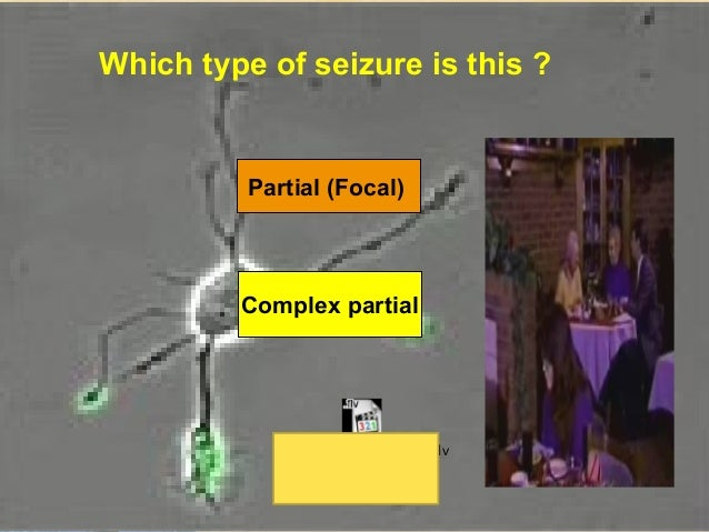 Partial (Focal) SeizuresSimple         Complex       2ry Generalization                Carbamazepine