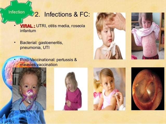 ClassifiCation of fC• Simple (typical) FC• Complex (atypical) FC