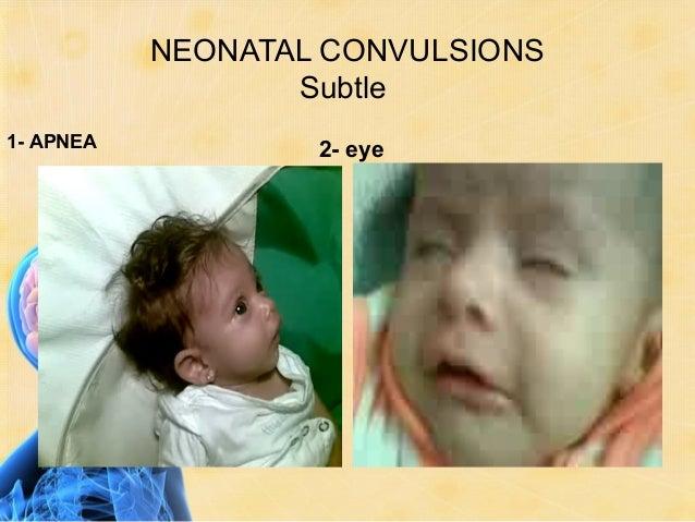 NEONATAL CONVULSIONS       Subtle4- UL           5- LL