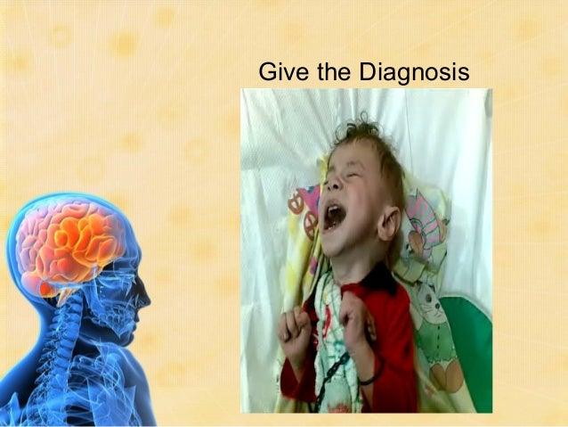 childhood  seizures and epilepsy for medical students