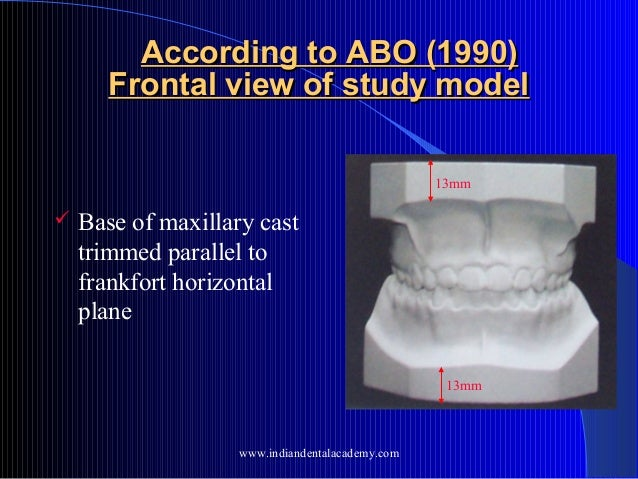 Diagnostic Study Models for orthodontic & dental case study