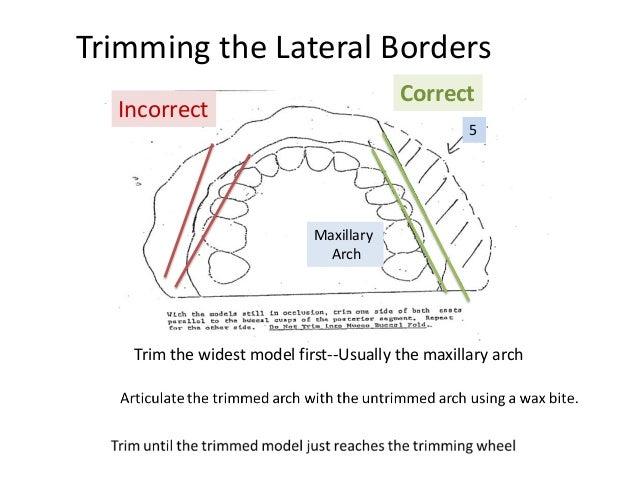 STUDY MODEL TRIMMING - University of Washington