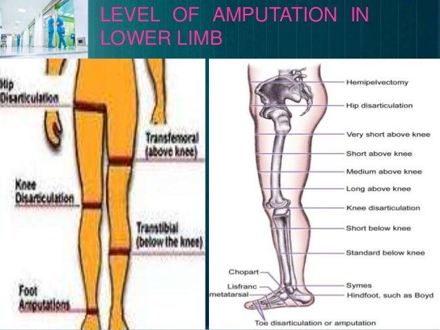 Amputation,Stump care, phantom limb pain and gait training