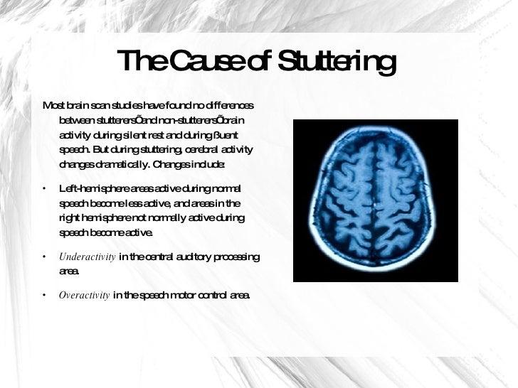 adult stuttering brain