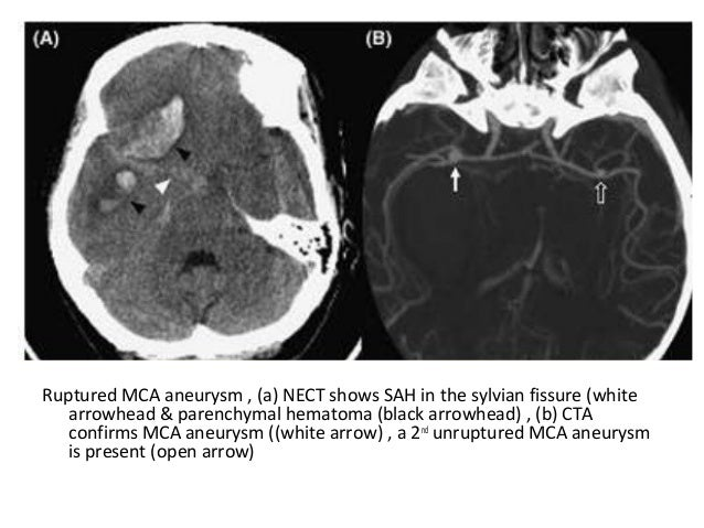 Diagnostic Imaging Of Subarachnoid Hemorrhage