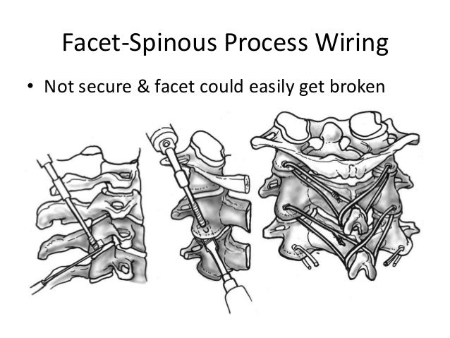 Wire Posterior Cervical Pictures to Pin on Pinterest