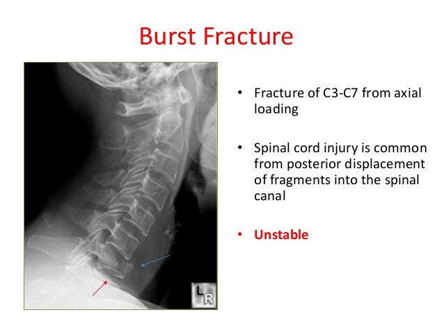 stable retrolisthesis Traumatic retrolisthesis of the lumbar spine is a rare clinical entity only a few  case  thought of as an insufficient means of restoring stability.