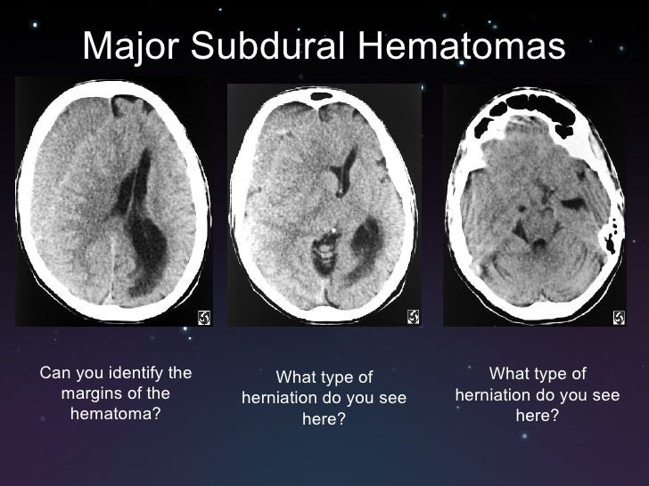 how can i tell what kind of iphone i have subdural and epidural hematomas 21482