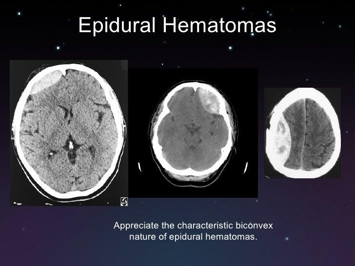 Hematoma subdural epidural hematoma vs Subdural vs