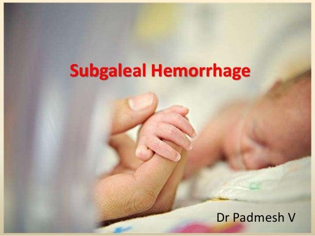 Subgaleal Hemorrhage Dr Padmesh V