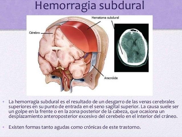 Cefaleas causadas por tumores cerebrales • Un tumor en expansión con el correspondiente incrementó de la presión intracran...