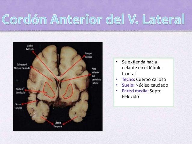 La superficie ventricular del hipocampo se halla cubierta por una capa de materia blanca: álveo del hipocampo que en su bo...