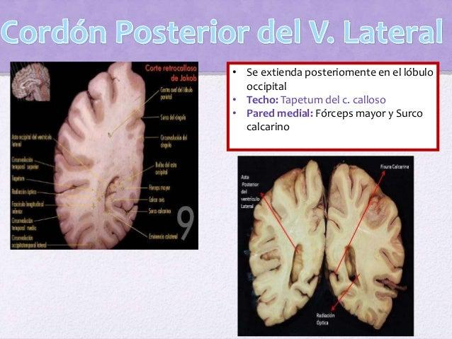 Pared anterior: Lámina anterior Pared posterior: Orificio del acueducto cerebral Pared lateral: Tálamo e hipotálamo Techo:...