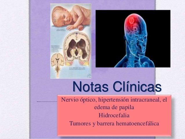 La hidrocefalia es un aumento anormal del volumen del líquido cefalorraquídeo dentro del cráneo. Se debe a: •Un aumento an...