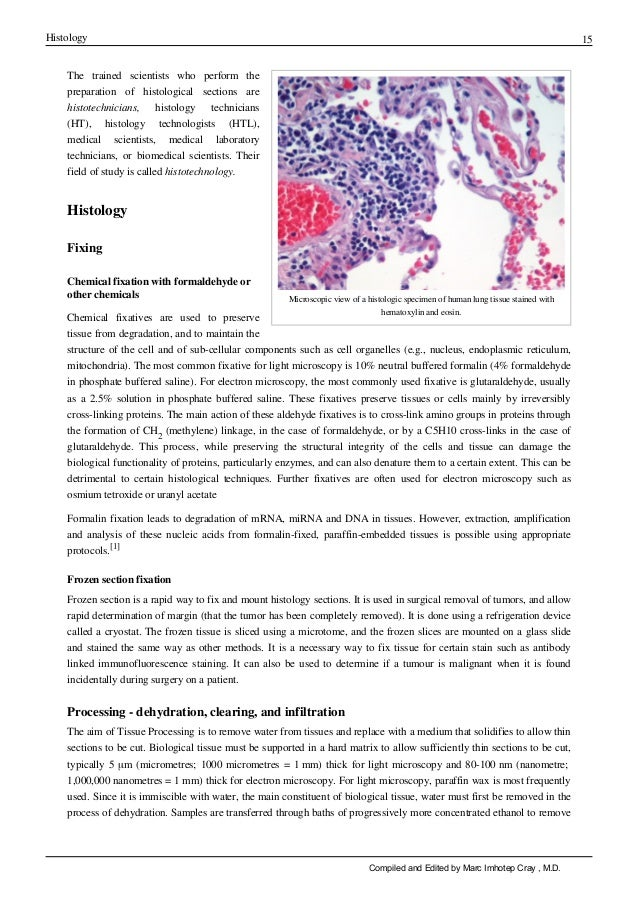 Histology 15 Microscopic view of a histologic specimen of human lung tissue stained with hematoxylin and eosin. The traine...