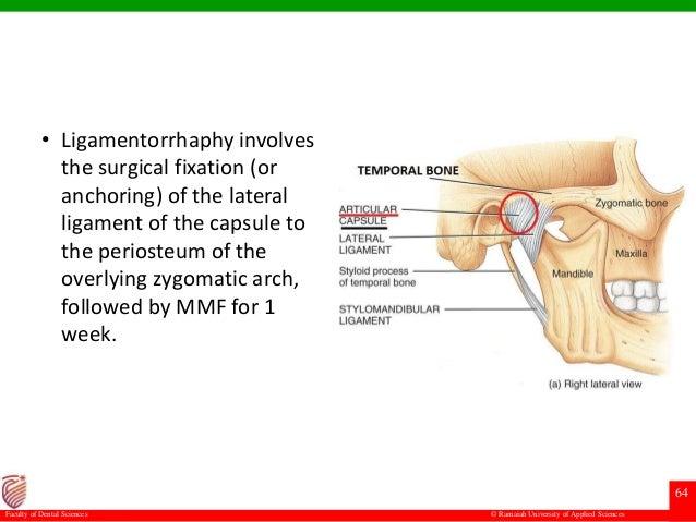 Subluxation And Dislocation Of Temporomandibular Joint
