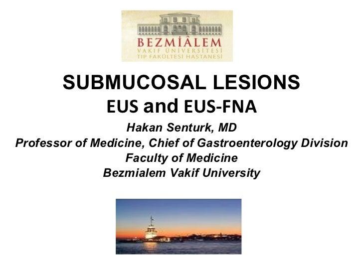 SUBMUCOSAL LESIONS EUS  and  EUS-FNA Hakan Senturk, MD Professor of Medicine, Chief of Gastroenterology Division Faculty o...