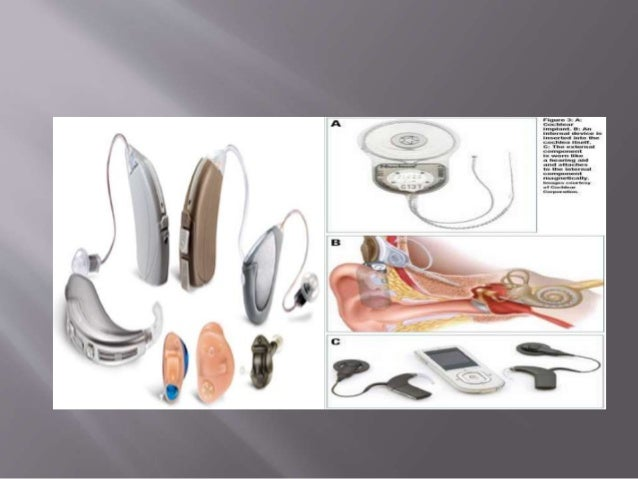 Perilymphatic fistula and lasix treatment