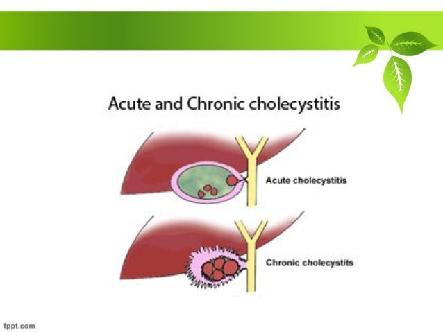 acute and chronic cholecystitis, Skeleton