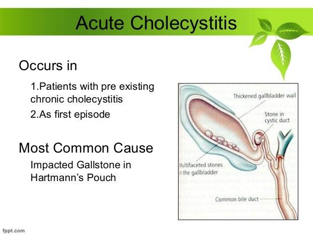 acute and chronic cholecystitis, Skeleton