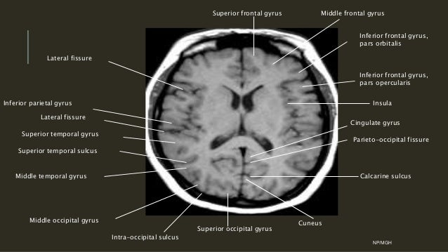 Images of Parahippocampal Gyrus Mri - #SpaceHero