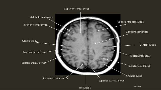 Sulcal anatomy supratentorial brain, excluding the temporal lobe.