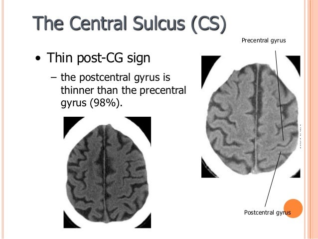 Sulcal And Gyral Neuroanatomy The postcentral gyrus is highlighted in blue. sulcal and gyral neuroanatomy